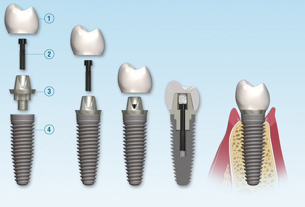 Taking Care Of Your Dental Implants | Dental Implant Life