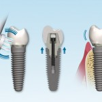 Taking Care Dental Implants_2_full