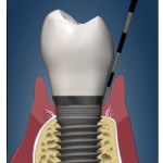 MandMofDentalImplants_03