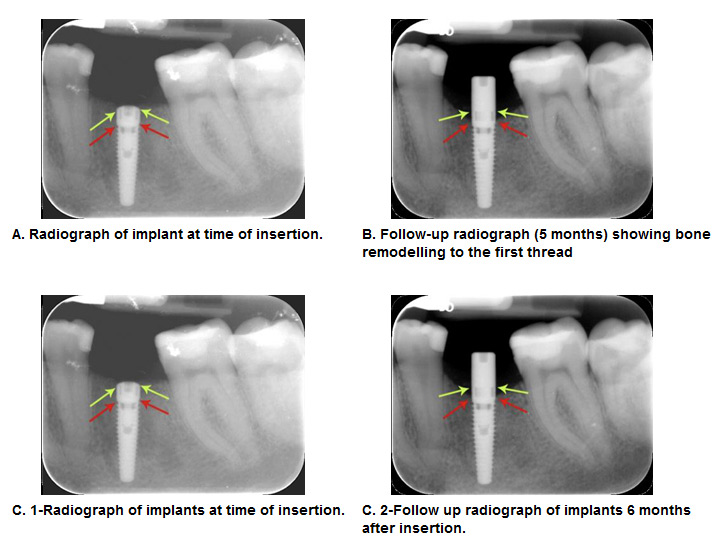 "Dental implants will fuse with bone; however, they lack the periodontal ligament   . The legal training requirements for dentists who carry out implant treatment   differ .. This can be failure of the implant itself (fracture) or bone loss, a ""melting""   or"